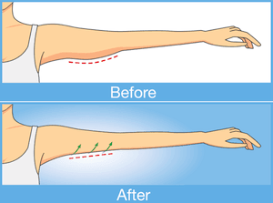 Recovering from Plastic Surgery: Arm Lift Recovery