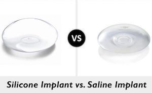 Saline Breast Implants vs. Silicone Breast Implants