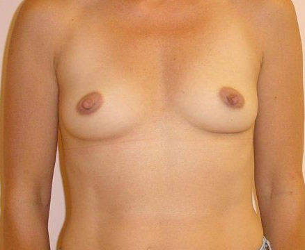 Breast Implants In New Hampshire