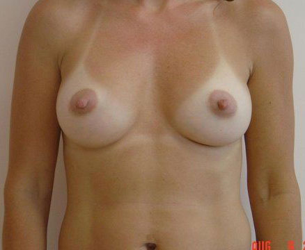Breast Implants NH