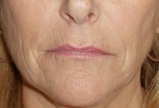 Microneedling Chelmsford Before And After