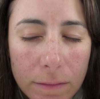 Mistake can ipl foto facial are mistaken
