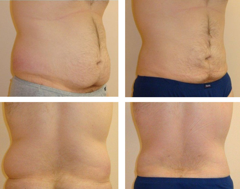 Male Patient Liposuction of Abdomen & Hips Before And After