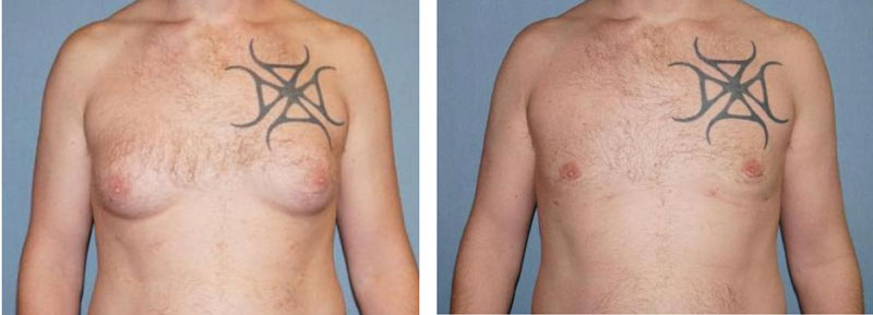 Male Breast Reduction Before and After Photo